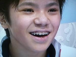 宇野選手歯列矯正中
