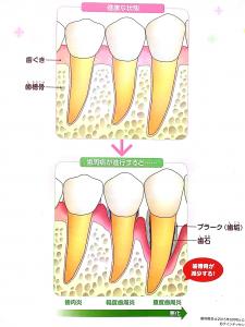 歯周病説明用